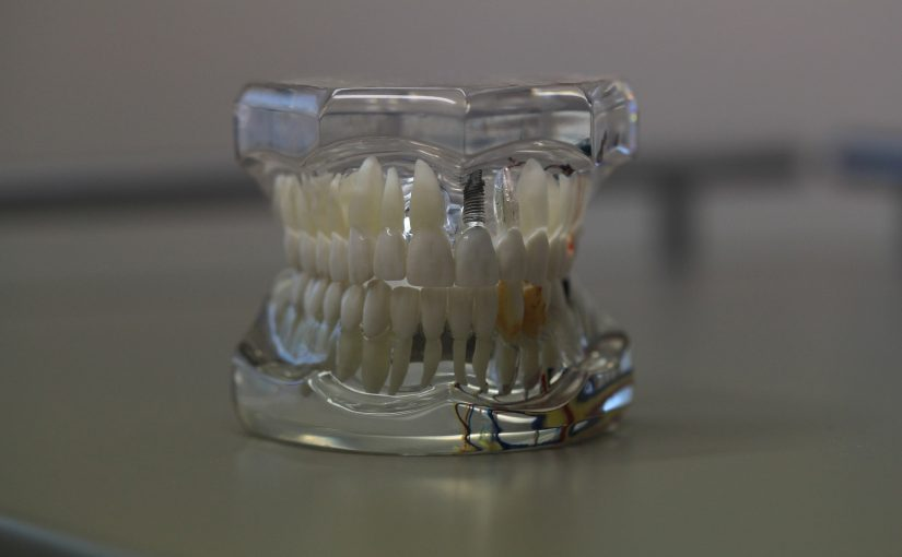 Things To Know About Complete Dentures Brisbane North Solution