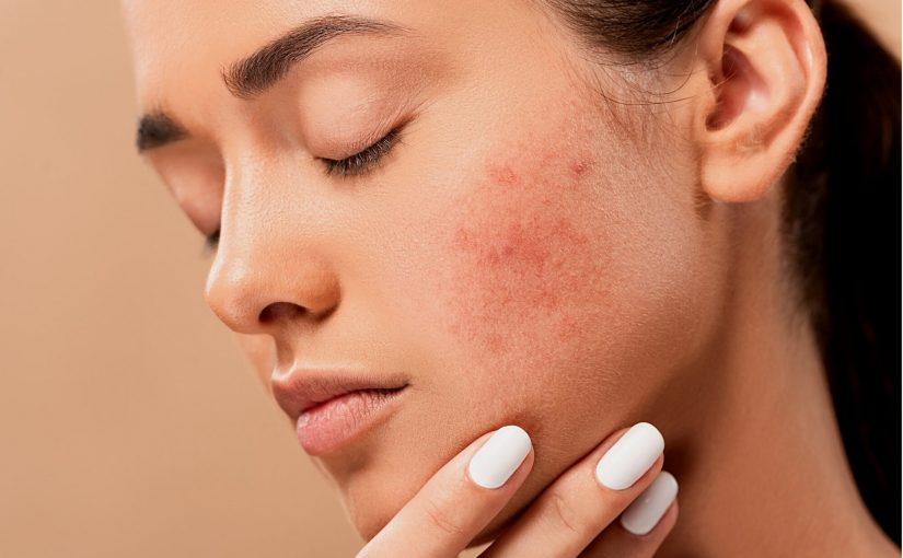Acne Scar Treatment Options – How To Deal With The Skin Condition